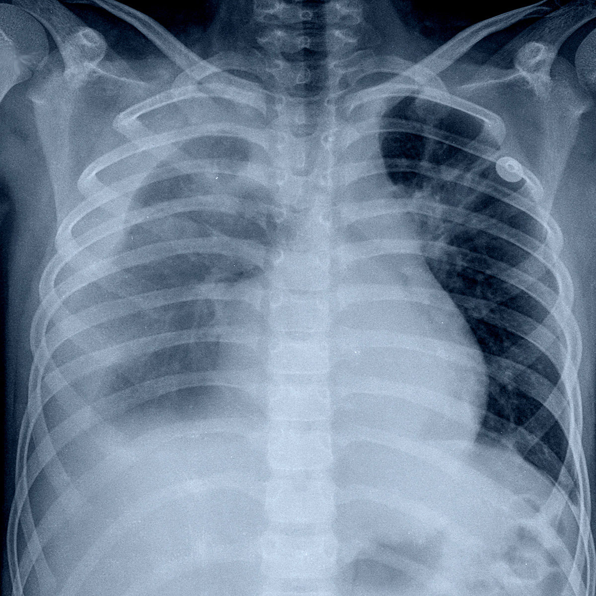 chest xray displaying pleural effusion caused by excessive accumulation of pleural body fluid